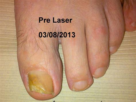 laser fungus treatment in virginia picture 2