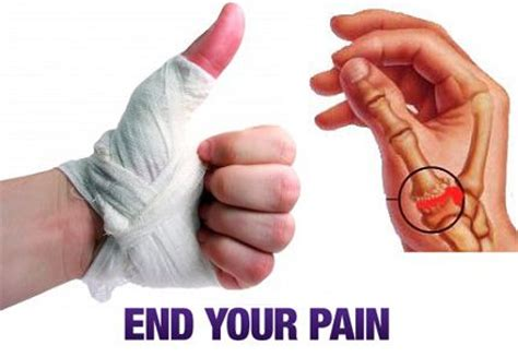 thumb joint pain picture 3