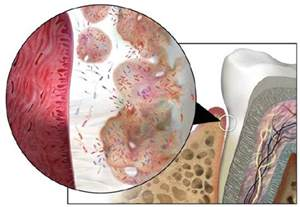 Prostate disorder inflamation picture 13