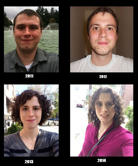 mtf hormones face fat redistribution picture 1