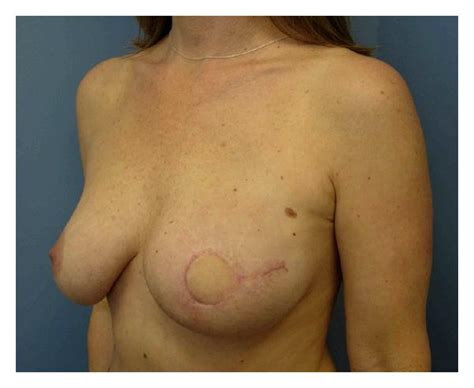 skin sparring mastectomy picture 2