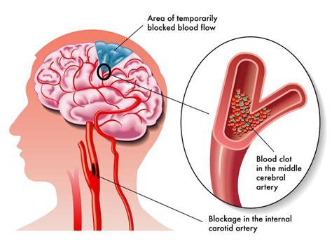 high cholesterol symptom picture 2