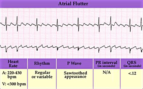 can thyroid nodule cause heart flutter picture 10
