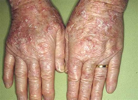 new prescription acne treatment 2013 picture 6
