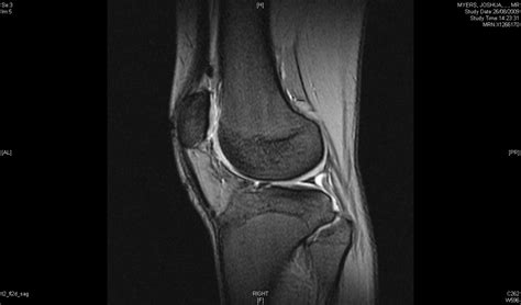 arthroscopy of knee joint picture 5