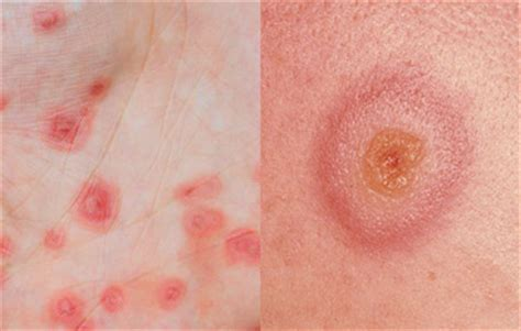 herpes rash picture 5