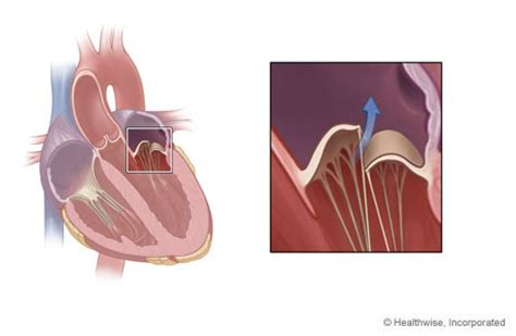 can mitral valve regurgitation may blood pressure low picture 13