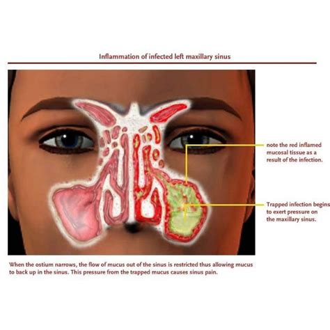 do sinus infections heal on their own picture 8