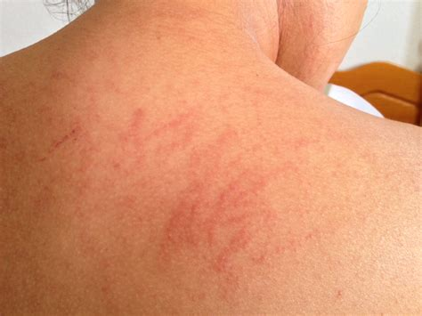 do allergies thining of skin picture 12