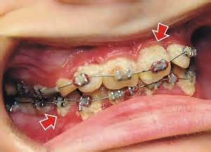 bind your teeth straight picture 5