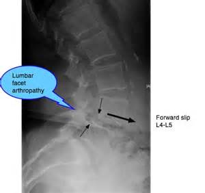 facet joint arthropathy picture 9