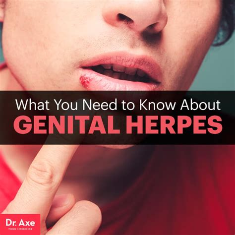 what is herpes picture 11
