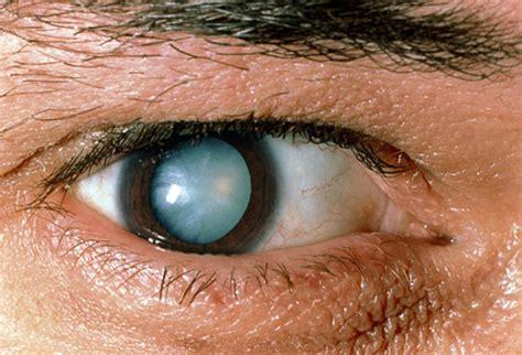 diabetics eyes picture 1