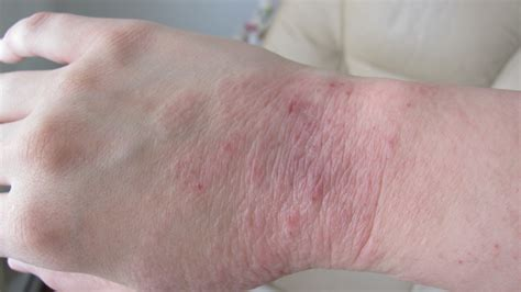 yeast rashes picture 1