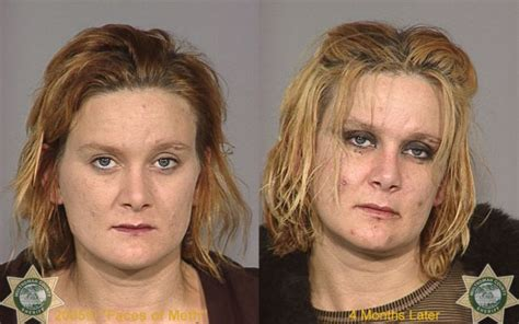 crystal meth and acne picture 5