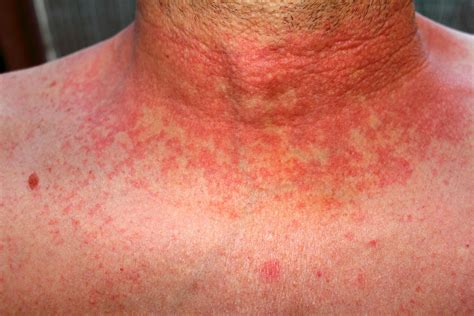 skin rash around neck picture 17