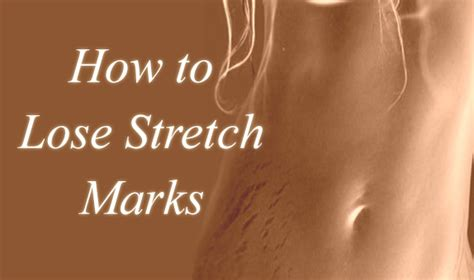 dr bilqees make homemade stretch marks remove cream picture 8