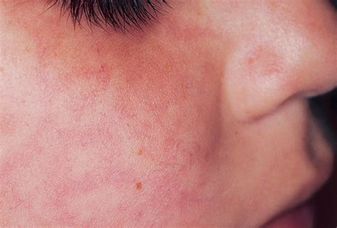face skin rash picture 7