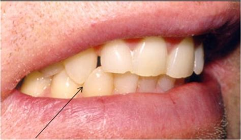 cuspid teeth picture 3
