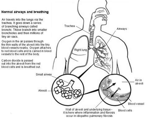 alveolitis picture 1