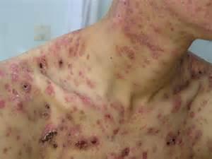 scrotum acne picture 9
