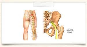does pinched sciatic nerve affect erection nerves picture 11