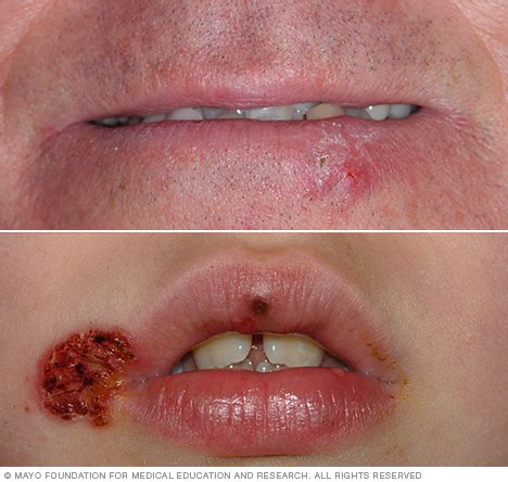 lip scarring +herpes picture 10