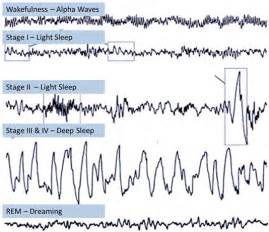 distinctive abnormalities in the stage 4 deep sleep picture 3