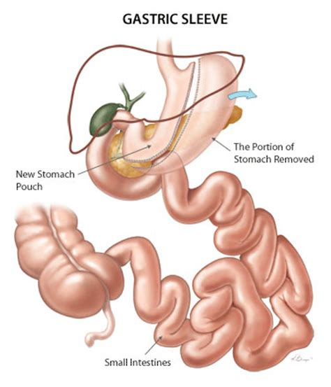 pill that is like gastrointestinal byp surgery picture 5