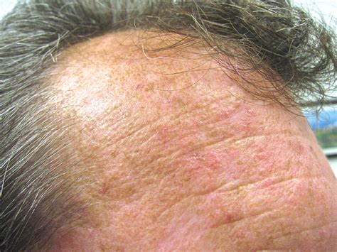 white vinegar and warts picture 10