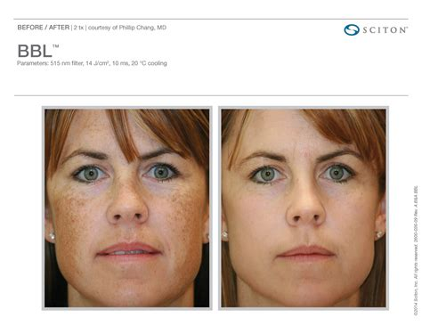 skin clear acne and laser center picture 5