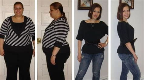canada weight loss ballon doctors picture 7