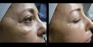 acne scarring on face what to do picture 11