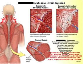 information on how to care for muscle pull picture 15