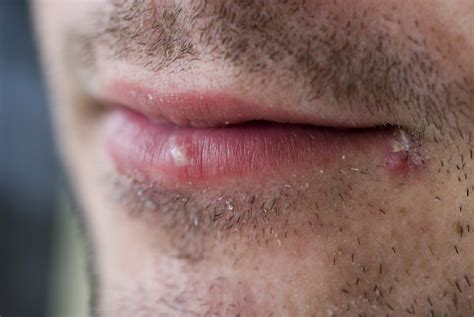 what causes blisters herpes picture 17