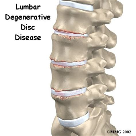 degenrative joint diease in the spine picture 19