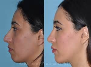 skin needling in los angeles picture 17