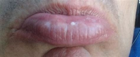 Pictures of fordyce's conditions on the upper lip picture 2