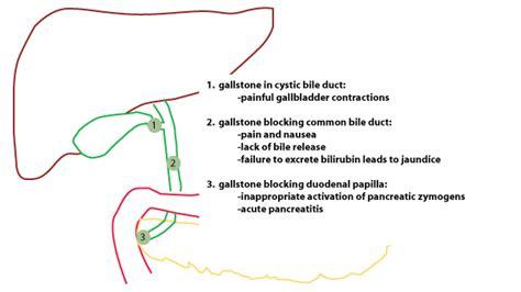 where does digestion occur in the liver picture 10