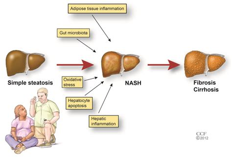 fatty liver and causes picture 1