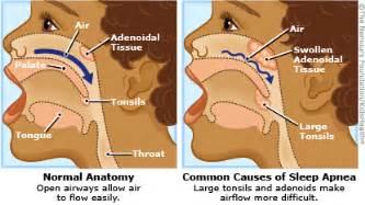 do swollen tonsils cause sleep apnea picture 10