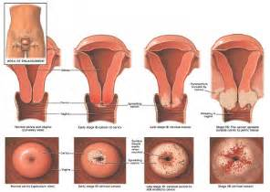 light vaginal bleeding after menopause picture 7