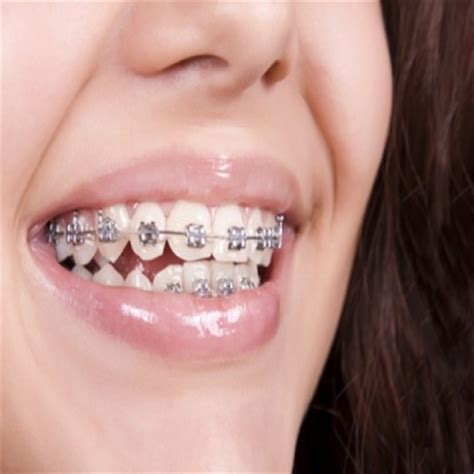 procedure straightens teeth on mpt picture 10