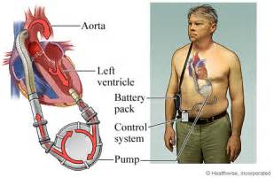yeast in blood system with lvad picture 12