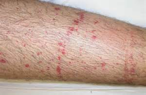 herpes 1 petechiae picture 6