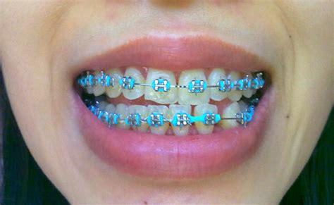 colored braces h picture 11