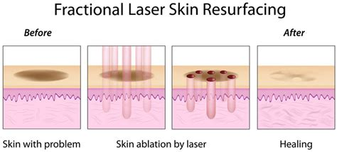fraxel laser for acne scarring picture 18