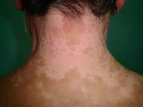 melanoma skin picture 11