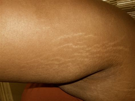 surgery stretch mark removal picture 2