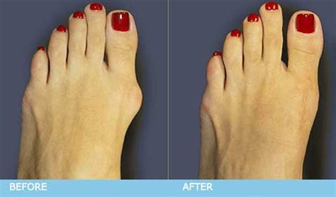 are you put to sleep for bunion surgery picture 9